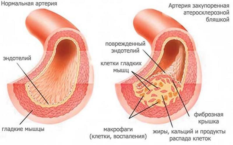 su 2 laipsnių hipertenzija, paskirkite hipertenzija 3 laipsnio 3 pakopa kas tai