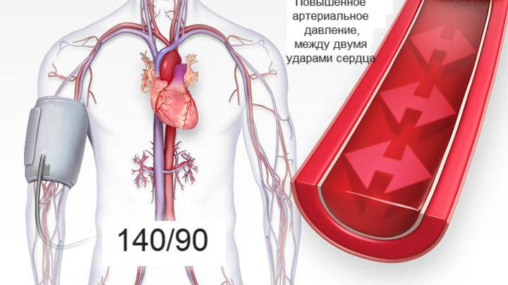 slėgis 140/100 hipertenzijos)