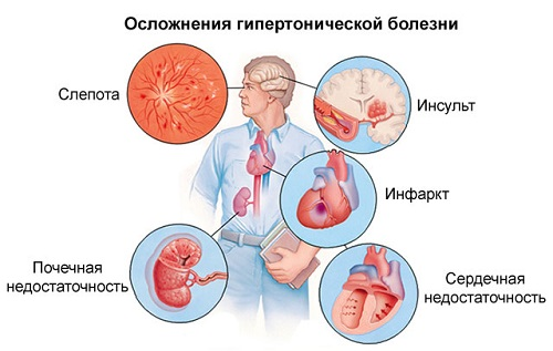 kokie yra hipertenzijos rizikos etapai ir laipsniai