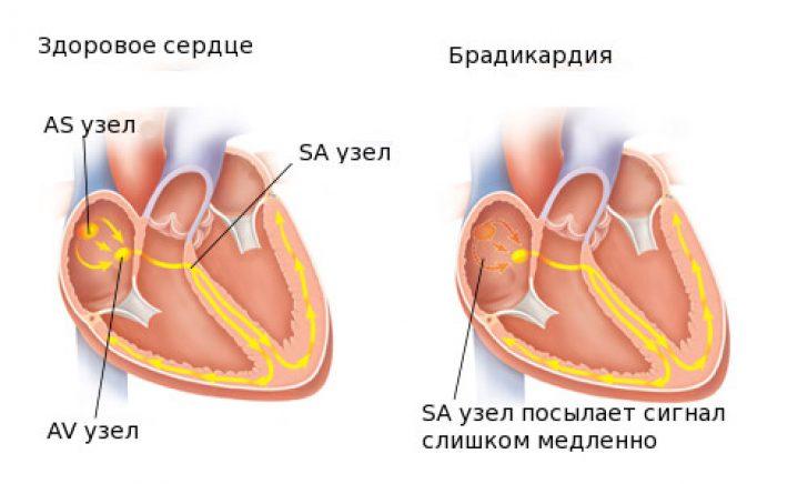kaip liaudies būdais atsikratyti hipertenzijos