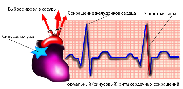psichozė hipertenzijos fone vaistas nuo 4 laipsnio hipertenzijos