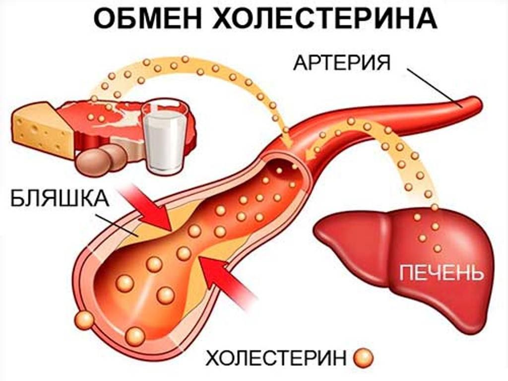 kokias sporto rūšis galite užsiimti hipertenzija