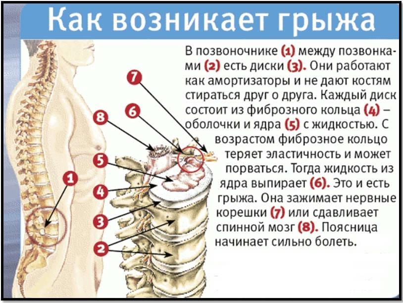 Kraujo spaudimo priklausomybė nuo gimdos kaklelio osteochondrozės
