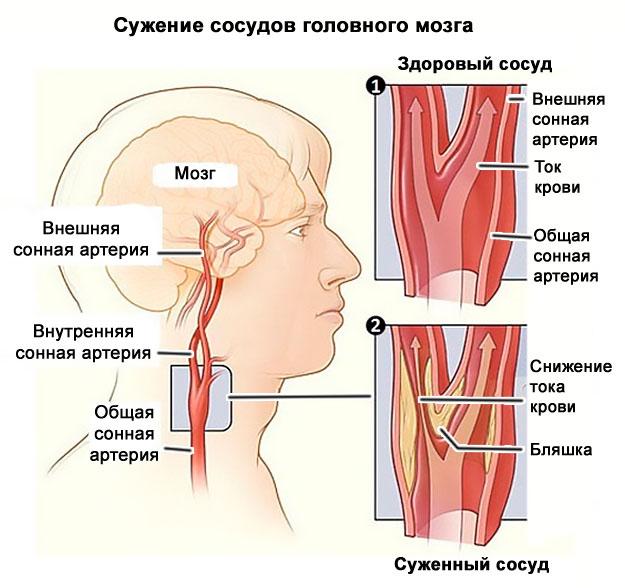 Gimdos kaklelio stuburo osteochondrozė - Distonija November