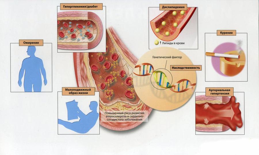 hipertenzija nuo chondrozės