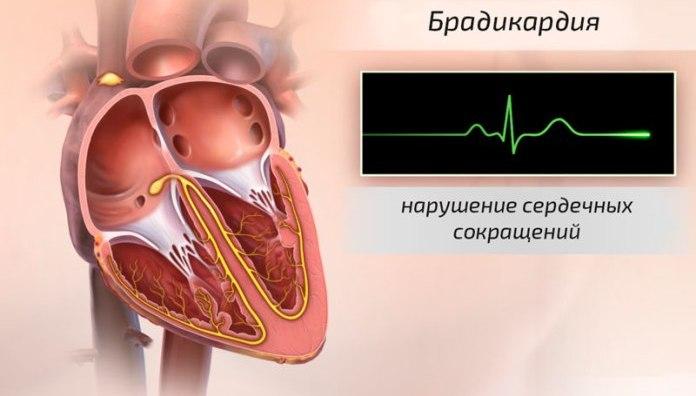 kiek druskos hipertenzijai gydyti Ar jie suteikia neįgalumo grupę dėl II laipsnio hipertenzijos
