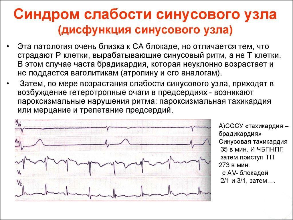 Nugalėtas hipertenzijos forumas Pasidaryk pats hipertenzija