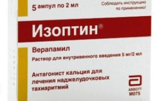 Kalcio gliukonatas, 500 mg, 10 tablečių