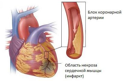 Pirmą kartą krūtinės angina - Hipertenzija November
