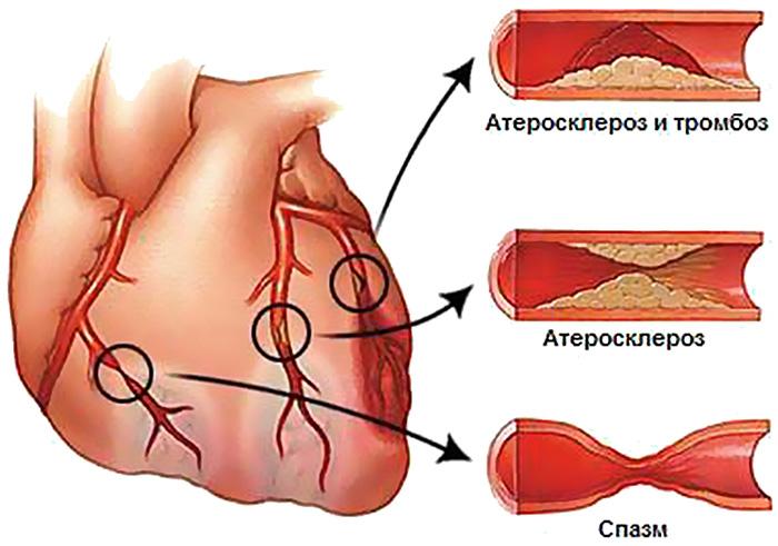izoketas ir hipertenzija