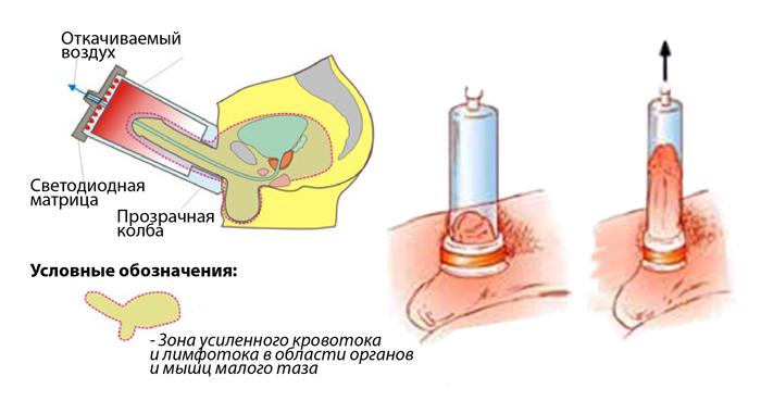Urologo patarimai: kaip išvengti erekcijos problemų